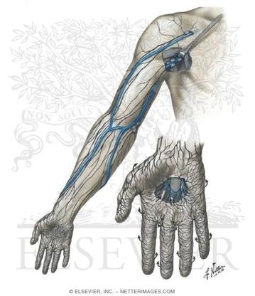 リンパ上肢2.jpg