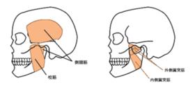 顎関節症2.png