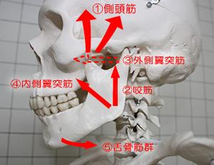 顎関節症6.jpg