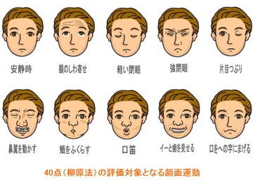 顔面神経麻痺.jpg