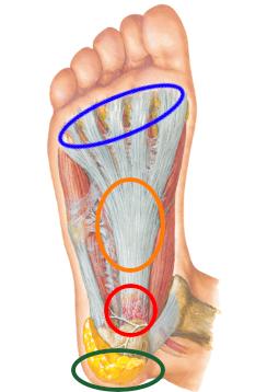 足底筋膜炎2.jpg