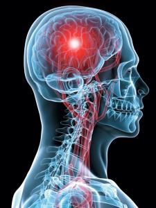 頭痛イメージ.jpg