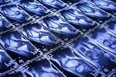 MRI 膝.jpg